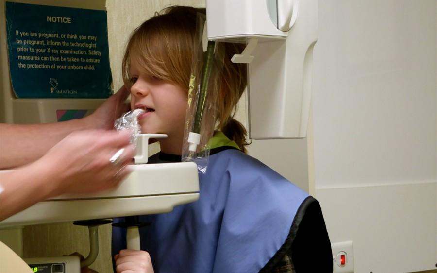 Amit a gyermekkori fogszabályozásról tudni kell